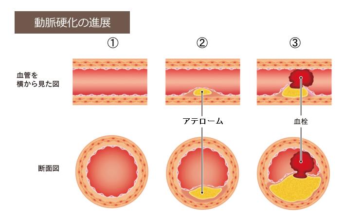 動脈硬化を引き起こすアテローム